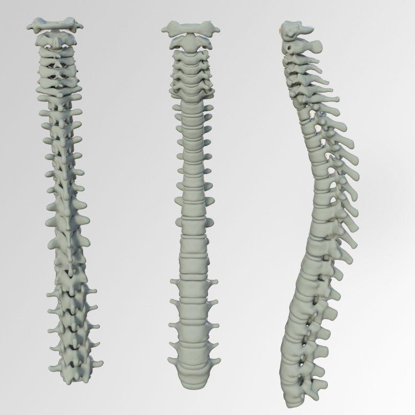 Spinal Cord Injury Lawyer Lakeland FL